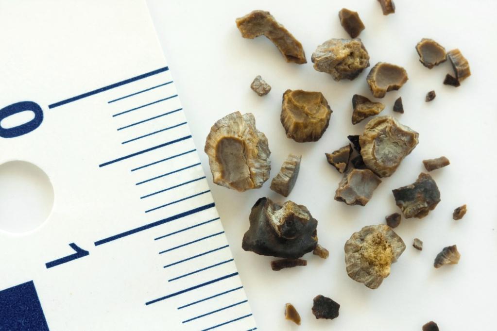 удаленные из почек камни